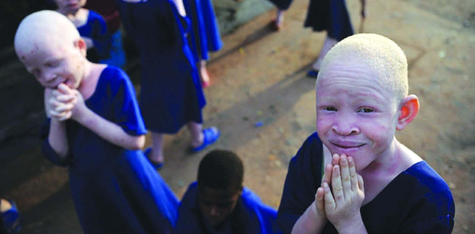 albinoer i afrika